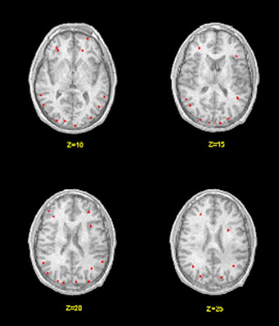 brain-scan-of-hearing-name-ncbi.nlm.nih.gov